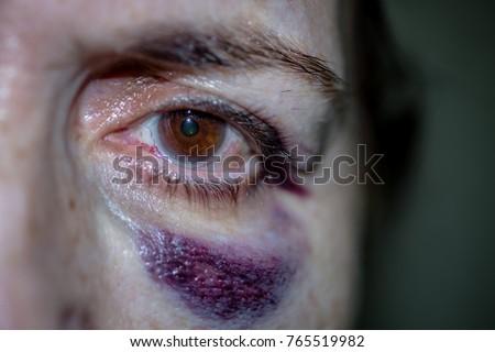 hematoma facial photo