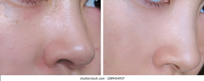 Facial skin before and after using makeup base compared to show the smoother and brighter skin.