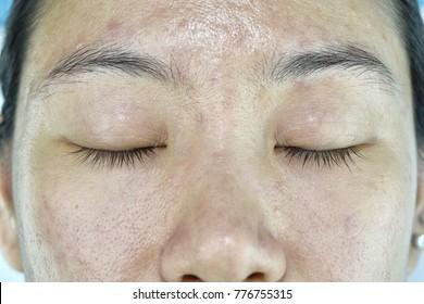 Facial skin problem, Aging problem in adult, wrinkle, acne scar, large pore, dark spot, dehydrate skin.