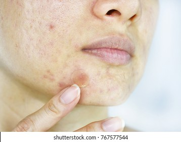 Dark Patches On Face Images, Stock Photos & Vectors | Shutterstock