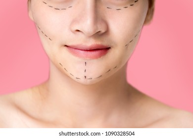 Facial Treatment. surgery chin drawing line marks on women  face  Plastic Surgery Concept.