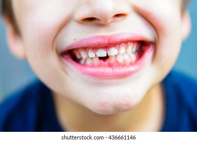 fall out of the first tooth