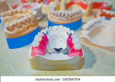 False jaw. Tooth plates. Sandwich denture. Orthopedic dental constructions. Denture model with clasp. Jaw model. Clasp on the dental prosthesis. Orthopedics. Dental procedures. Modern medicine