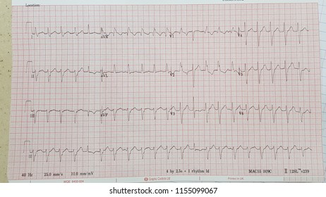 Fascicular VT, Left posterior fascicular VT, atypical RBBB pattern, capture beat