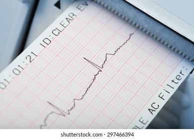 Fast diagnosis of cardiac rhythm disorders. Macro photo