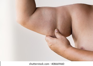 Fat Arm Cellulite Man More Likely Stock Photo Edit Now 408669460