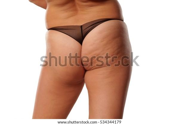 Fat Ass Woman Cellulite Stock Photo Edit Now 534344179