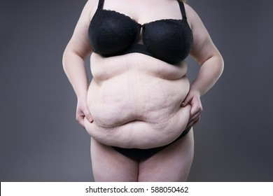 Fat female belly, overweight body, woman with stretch marks on abdomen posing on gray background