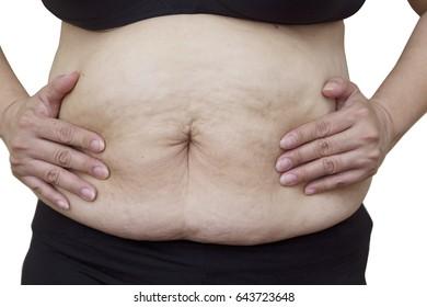 Fat female body part.