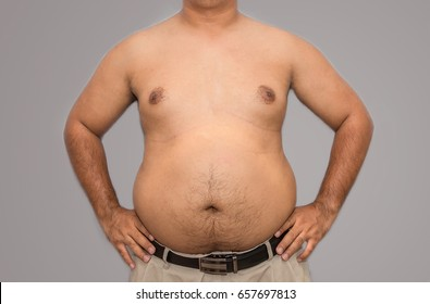 Fat guy is showing his paunch with scar and acne on his skin