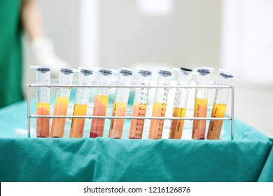 Fat From Liposuction in Syringes with Stainless Stand in Operation Room
