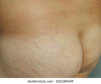 Fat man's skin stretch bum cause wrinkle and furrow line.