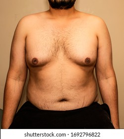 A fat or obese guy with extra fat around chest and belly also called Guy with Man Boobs, stretch marks around belly. Left Chest inverted nipple. Belly button hidden in belly fat.