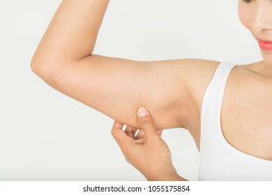Fat on the arm in women