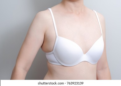 Fat overweight woman body with small underwear bra cup