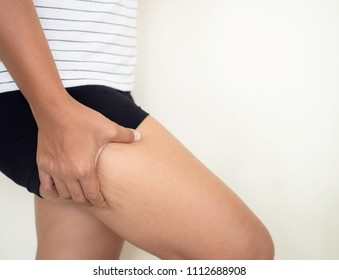 Fat thighs, cellulite of of middle-aged women.