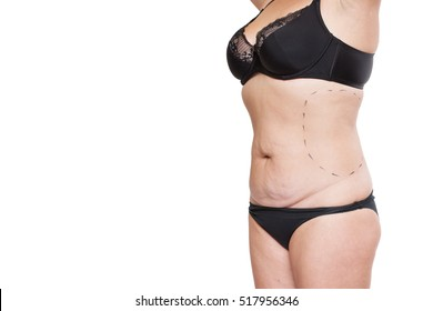 Fat Cyst Images, Stock Photos & Vectors | Shutterstock