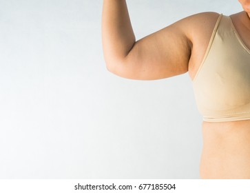 fat women has overweight. she used hands squeezing excess fat of the arms