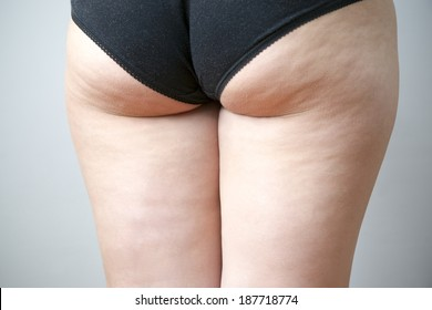 Fatty female hips. Skin care, cellulite. Obesity