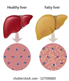 Fatty liver images stock photos vectors shutterstock fatty liver disease ccuart Gallery