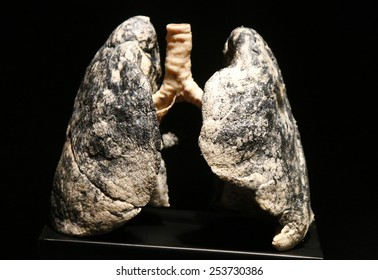 """FEBRUARY 17, 2015 - BERLIN: a fully plastinated human (smoker's) lung in the newly opened """"Menschen Museum"""" (human museum) with plastinated corpses at the Alexanderplatz, Berlin-Mitte."""