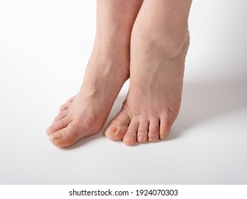 Feet before spa pedicure procedure. female feet with nails need care and pedicure, before visiting the spa salon on white background