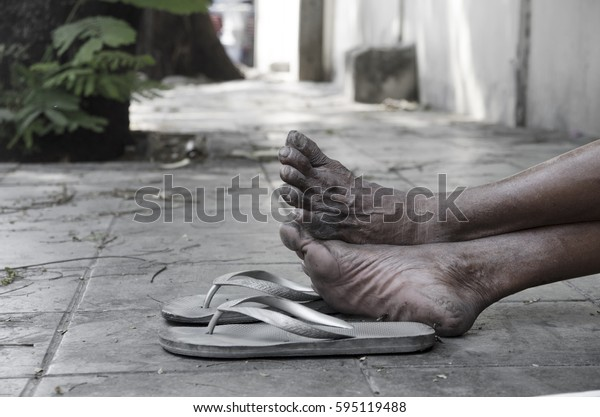 Feet of Homeless people with old dirty sandal on footpath
