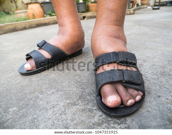 Feet Man Diabetes Dull Swollen Due Stock Photo Edit Now 1047351925