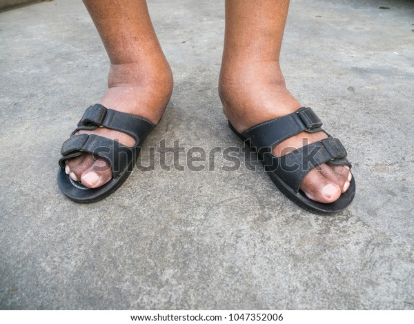 Feet Man Diabetes Dull Swollen Due Stock Photo Edit Now 1047352006