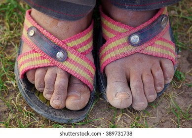 feet of poor boy covered with dirt