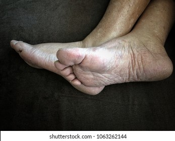 feet of a senior ill woman