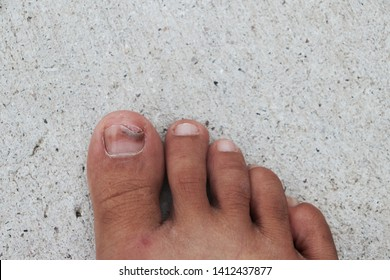The feet that had the nails swelled from the wounded nails were placed on the cement floor, placed outdoors and placed the image in the middle.Nail injury