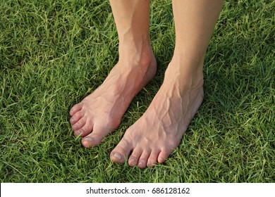 Feet and veins, swelling. Female bare feet on green grass
