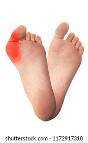Feet with and without bunion, hallux valgus