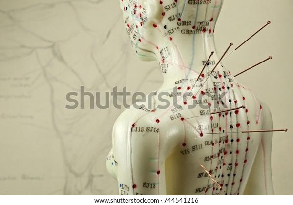 Akupunkturmodell mit Nadeln in der Schulter