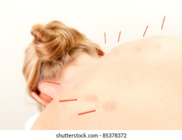 Female acupuncture patient showing good redness at the needle points, a sign of good response to the treatment