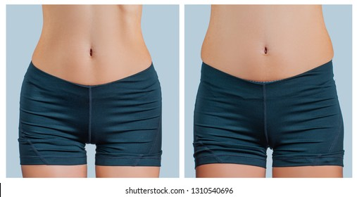 Female body before and after liposuction. Plastic surgery concept and weight loss
