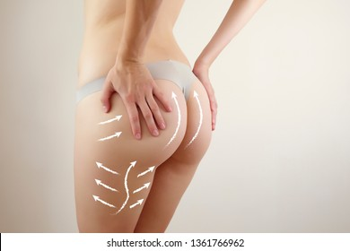 female body closeup highlighted with arrows showing massage lines / anti-cellulite program