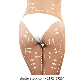 Female body with the drawing arrows. Fat lose, liposuction and cellulite removal concept