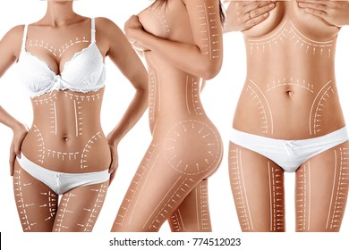 Female body with patterned lines and arrows on it, isolated on white. The concept of plastic surgery, fat removal, liposuction and cellulite.