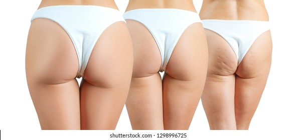 Female buttocks before and after anti cellulite treatment. Plastic surgery concept