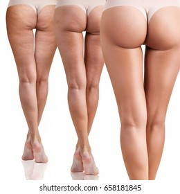 Female buttocks before and after cellulitis.