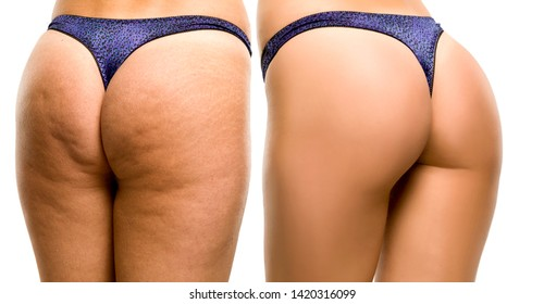 Female buttocks before and after on white background