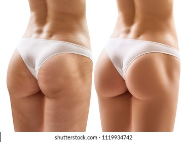 Female buttocks before and after treatment. Isolated on white.