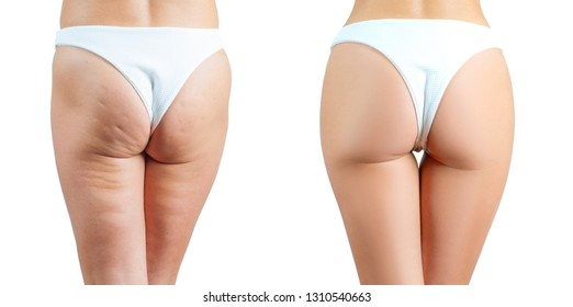 Female buttocks before and after treatment anti cellulite massage. Plastic surgery concept
