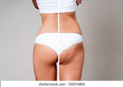 Female buttocks before and after treatment. Plastic surgery concept.