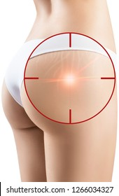 Female buttocks with laser ray into aim removes stretchmarks. Skin treatment concept