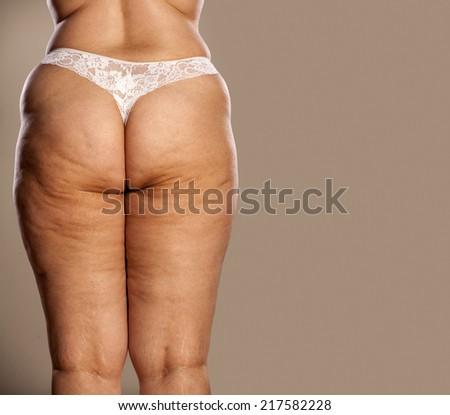 Nude girls cellulite bum photos