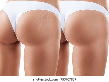 Female buttocks with stretching marks before and after treatment.