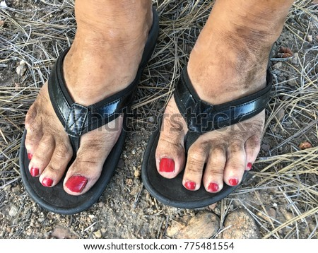 Painted toenails and flip flops